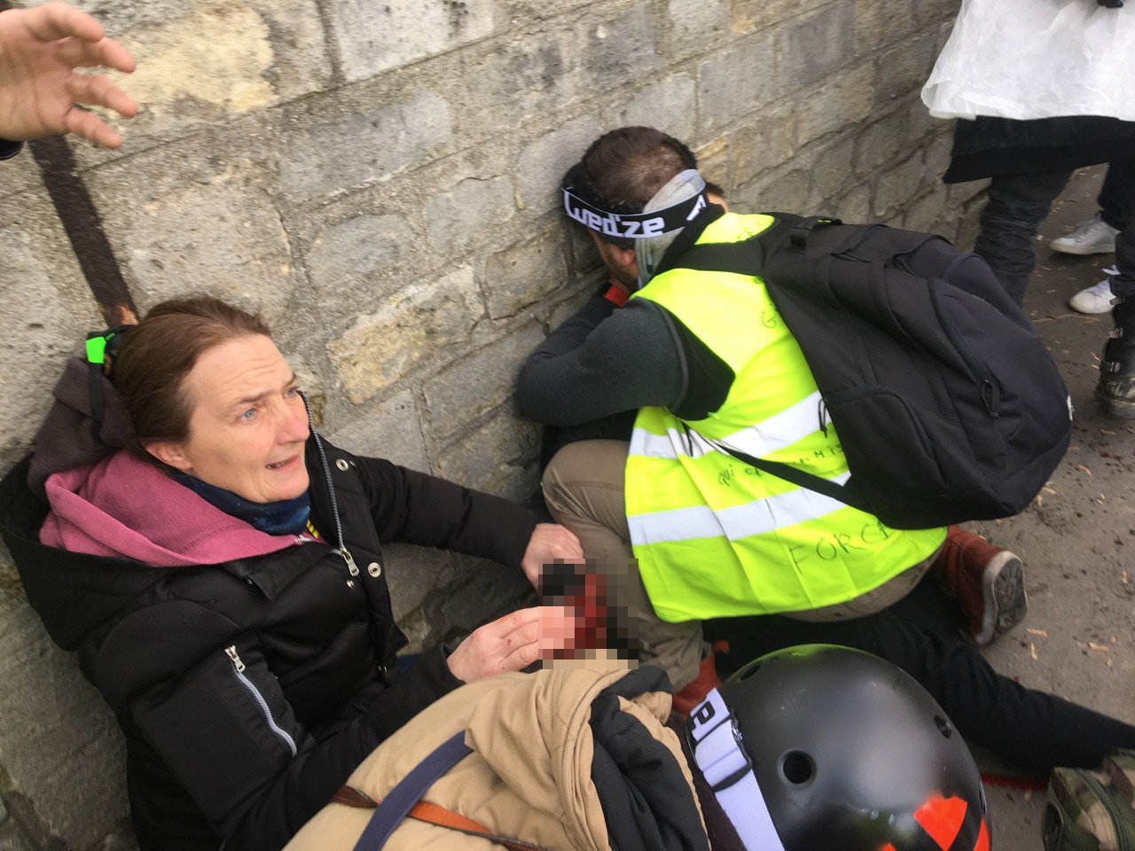 Yellow Vests Protester Gets Hand Blown off by Grenade in Paris